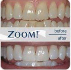teeth, whitening, dental restoration