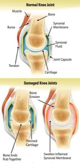 pain management in kansas city, pain management in lenexa ks, pain and health management, knee pain diagnosis, treatment for knee pain, treatment for pain, pain free evaluation in kansas city, pain free evaluation in lenexa ks