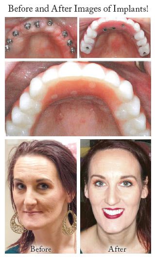 Krumly Dental Care - Seattle, WA - dental implants - see the difference dental implants can make - convert existing dentures to dental implants - Seattle dentists near me - Seattle dentistry near me