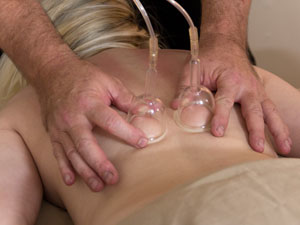 Massage therapy, cupping near Lake Murray, SC