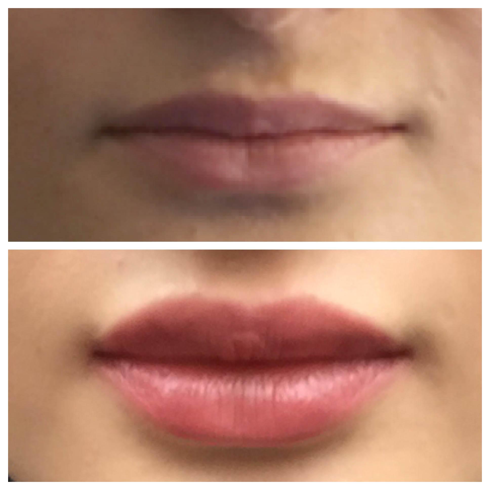 lip augmentation, Yorkville, Manhattan