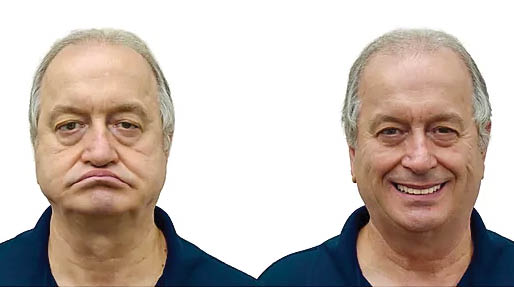 Pictures of a man before and after dentures provided by Love My Smile Center - dentures in Auburn, WA - dentures in Marysville, WA - man smiling with new dentures