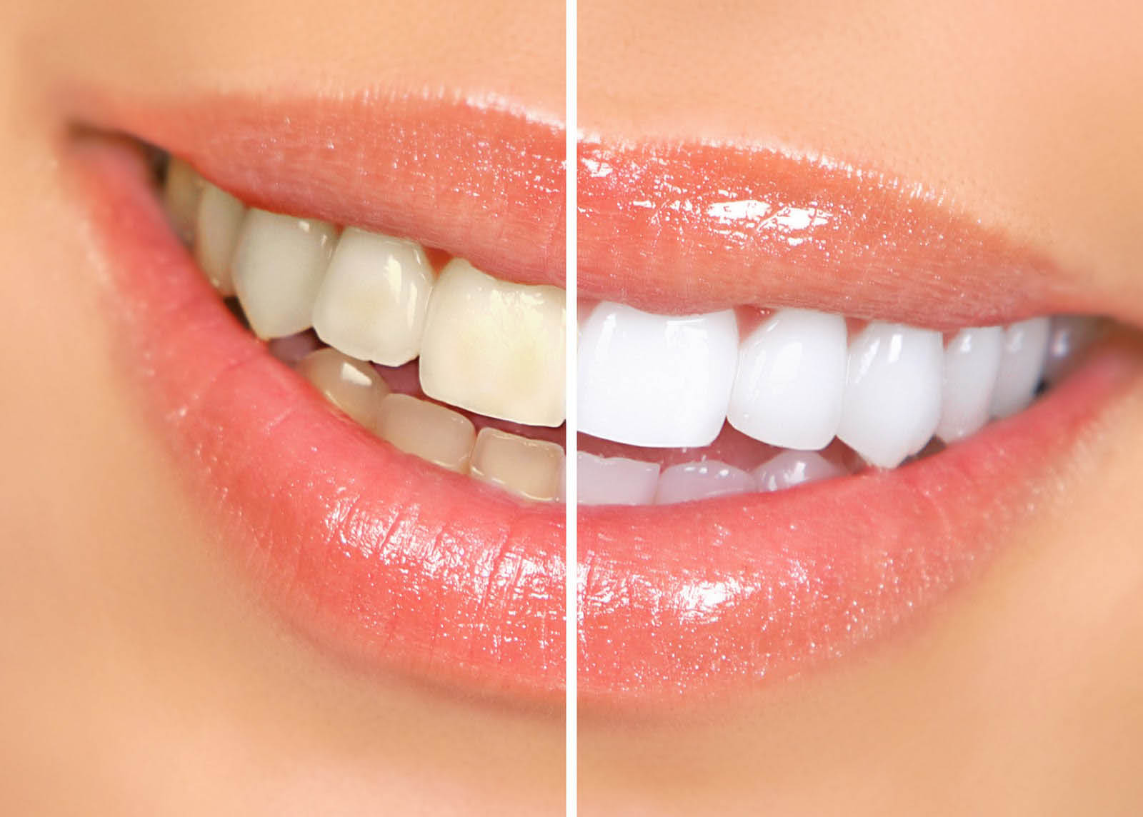 Teeth whitening by Maple Valley Dentistry Professionals in Maple Valley, WA