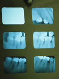 photo of x-rays from Mid Michigan Dental Group in Flint, MI