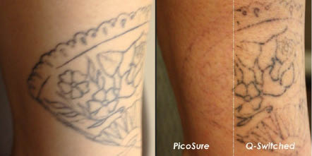 Laser Tattoo removal give better results in less time, even blues and greens