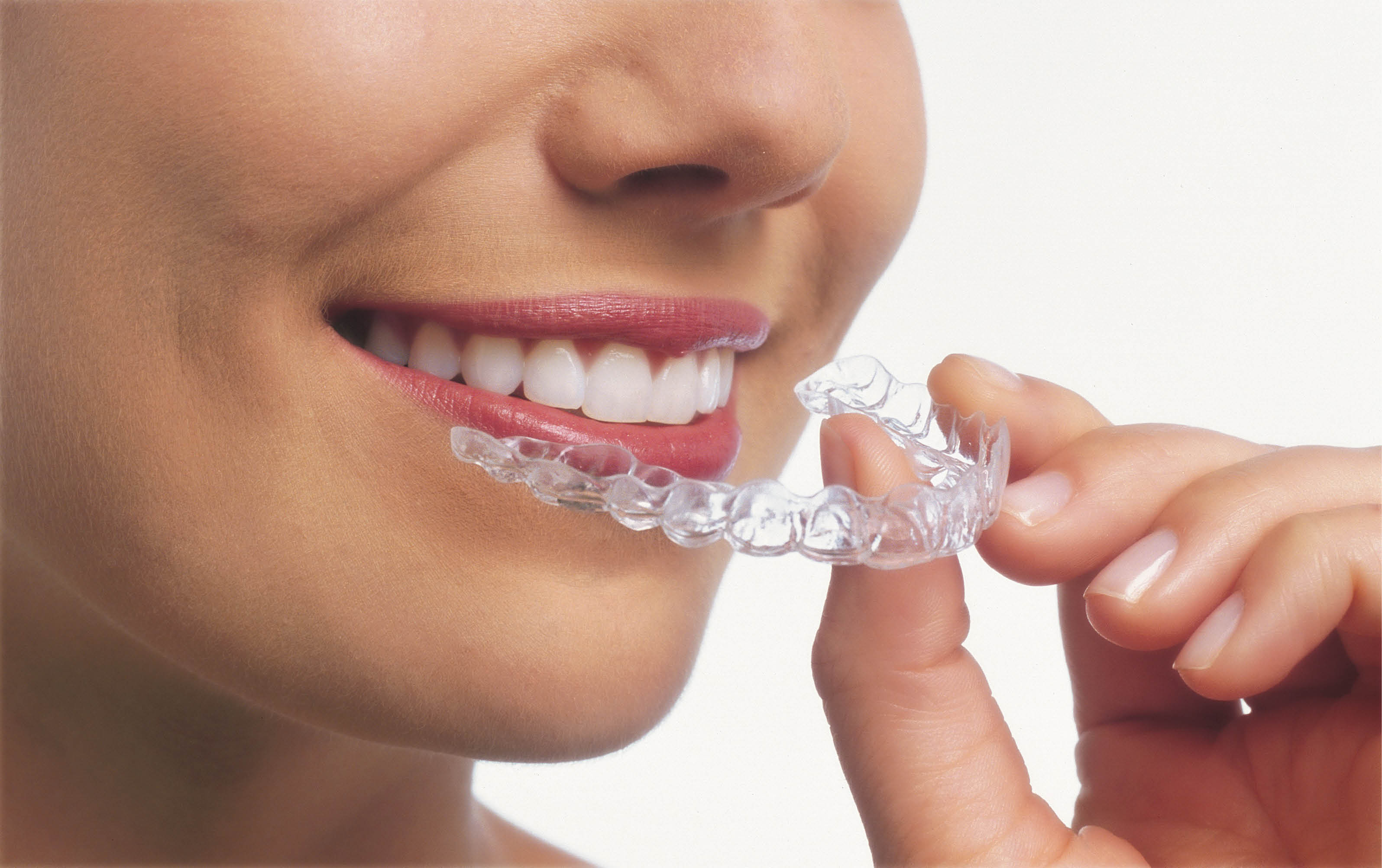 Nordberg Orthodontics - Invisalign clear braces - clear aligners - orthodontists in Puyallup, Washington