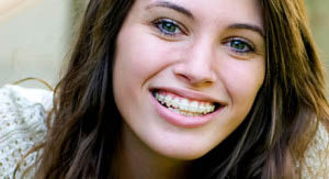 Add to your face value with teeth whitening