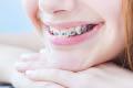 dever dental tmj family dentistry west chester ohio orthodontics