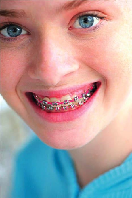 children dentistry Las Vegas dental coupons braces kids