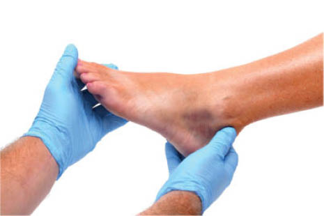 ankle injury,ankle injury in exton,ankle injury in 19341,diabetic footcare,diabetic footcare in exton,diabetic footcare in 19341,ankle problems,ankle problems in exton,ankle problems in 19341,coupon foot doctor exton,foot doctor coupons in exton