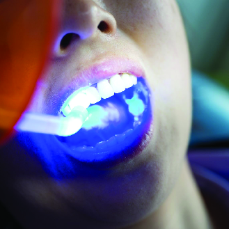 teeth whitening santa maria