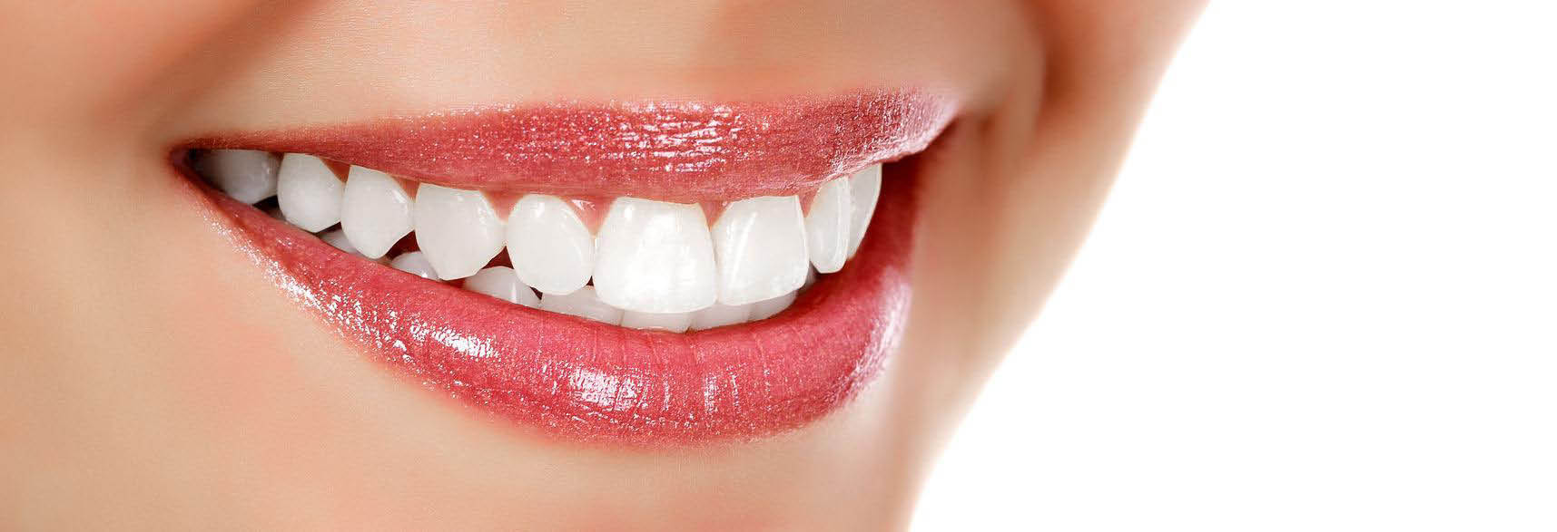 mission smile in mission viejo ca teeth whitening coupons near me