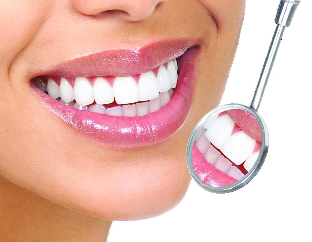 straight white teeth