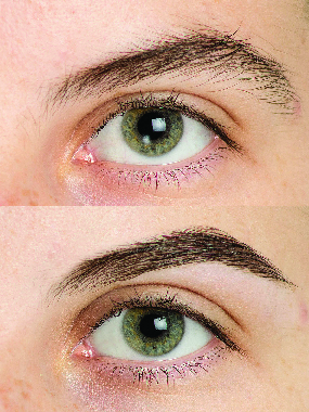 Eyebrow treatments