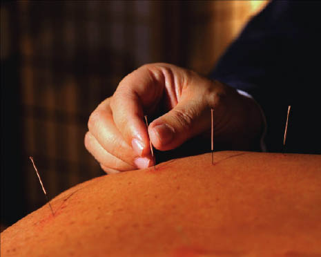 Acupuncture near Port Angles East