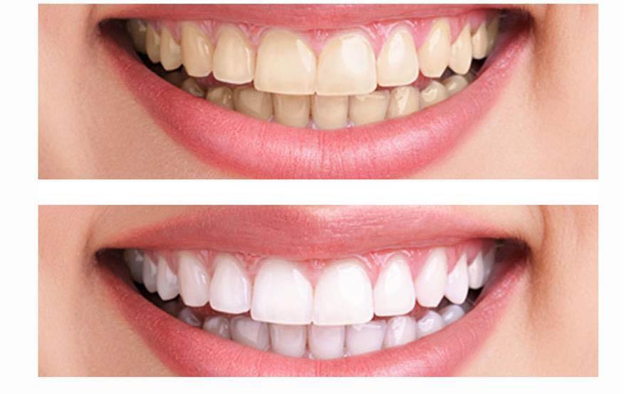 Teeth Whitening from Dr. Paul Cook dental office in Shoreline, Seattle, WA - teeth whitening coupons near me - Shoreline dentists near me - dentists in Shoreline, WA
