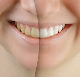 perfect32-family-dentistry-garland-tx-cosmetic-dentistry