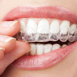 perfect32-family-dentistry-garland-tx-invisalign-fastbraces