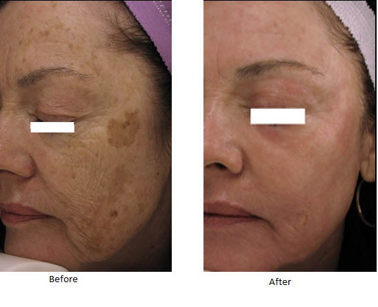 BOTOX® Cosmetic injections - Phoenix, Scottsdale, Mesa, Chandler, Tempe, Arizona