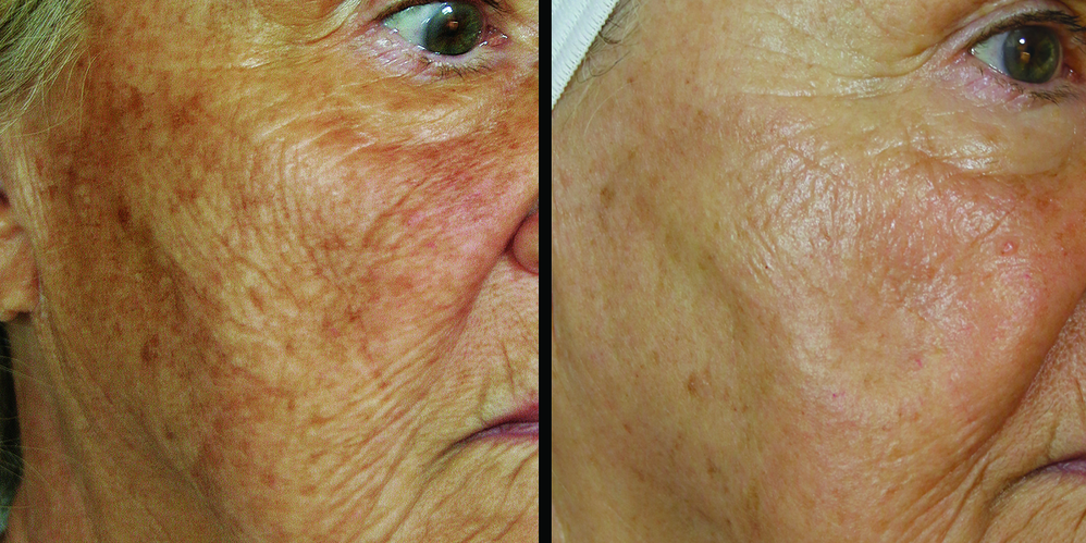 Belotero Radiesse Full Facial Re-Contouring Facial resurfacing Remove wrinkles wrinkle treatemnt