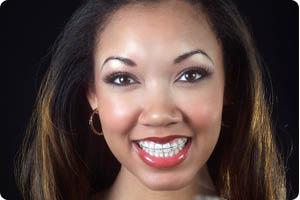 braces price, invisible line braces, clear braces price, dental brackets, dentist list, teeth stain