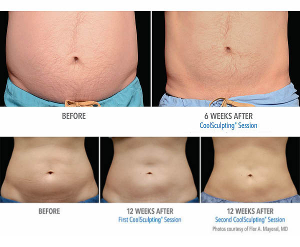 Sculpt MD in Livermore, CA before and after pictures of abdomen