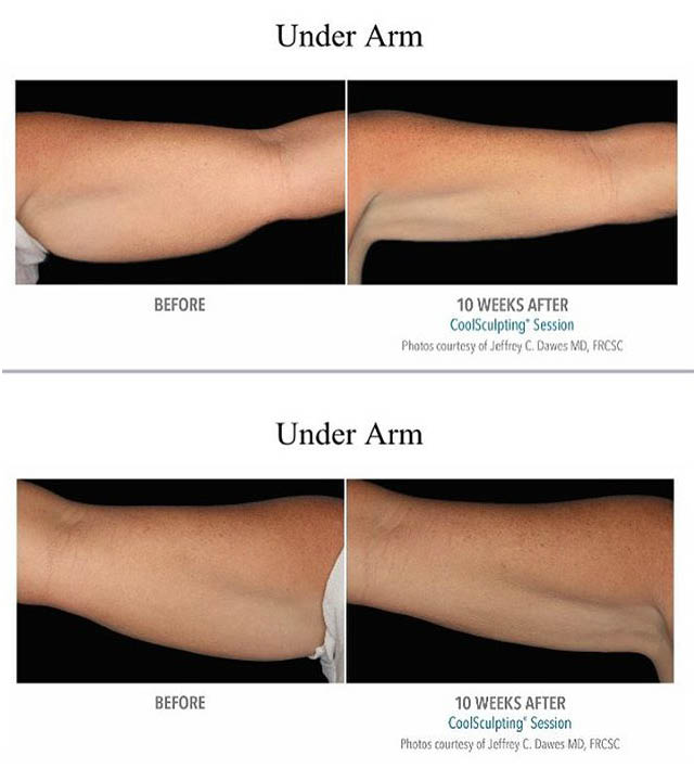 Sculpt MD in Livermore, CA before and after pictures of under arms
