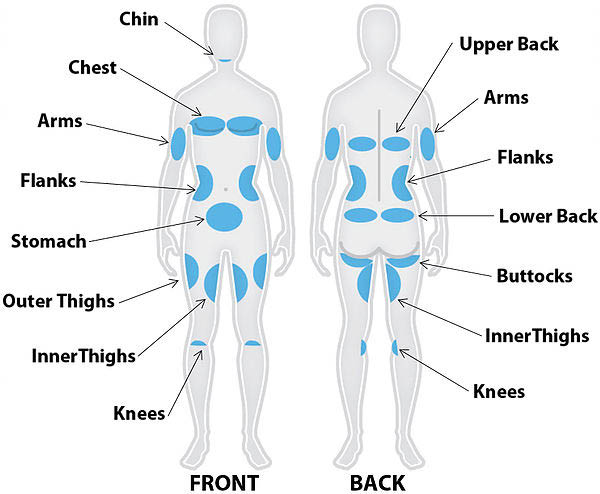 Sculpt MD in Livermore, CA areas of treatment on body diagram