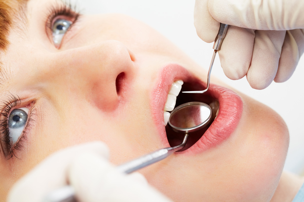 General dentistry from the dentists at Washington Dental Group - oral exams - oral cleanings - oral checkups - Seattle, WA