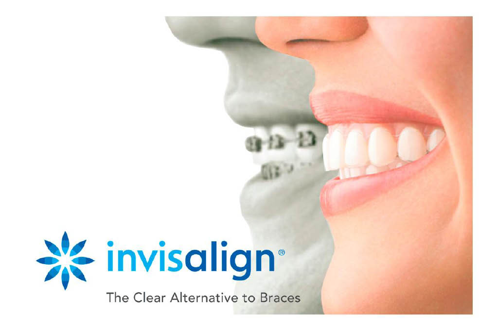 Invisalign for straighter teeth,.