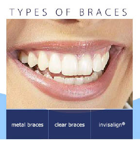 orthodontist invisible braces types of braces orthodontist snellville ga clear metal braces