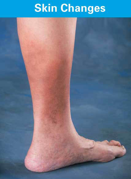 Vein Disease Symptoms: Skin Changes, Centers for Venous Disease, Glendale AZ