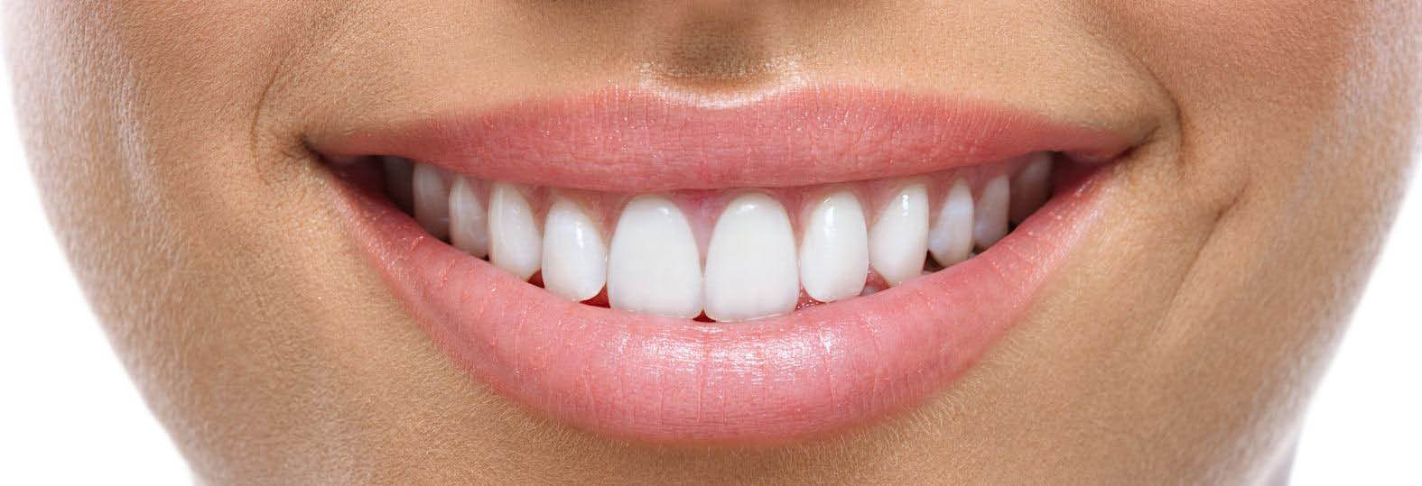 MK Dental family dentistry