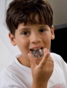 smile-zone-family-dentistry-orthodontics-dallas-tx-cosmetic
