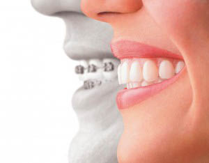 Invisalign invisible braces from Smiles on Madison Family & Cosmetic Dentistry - Seattle, Washington