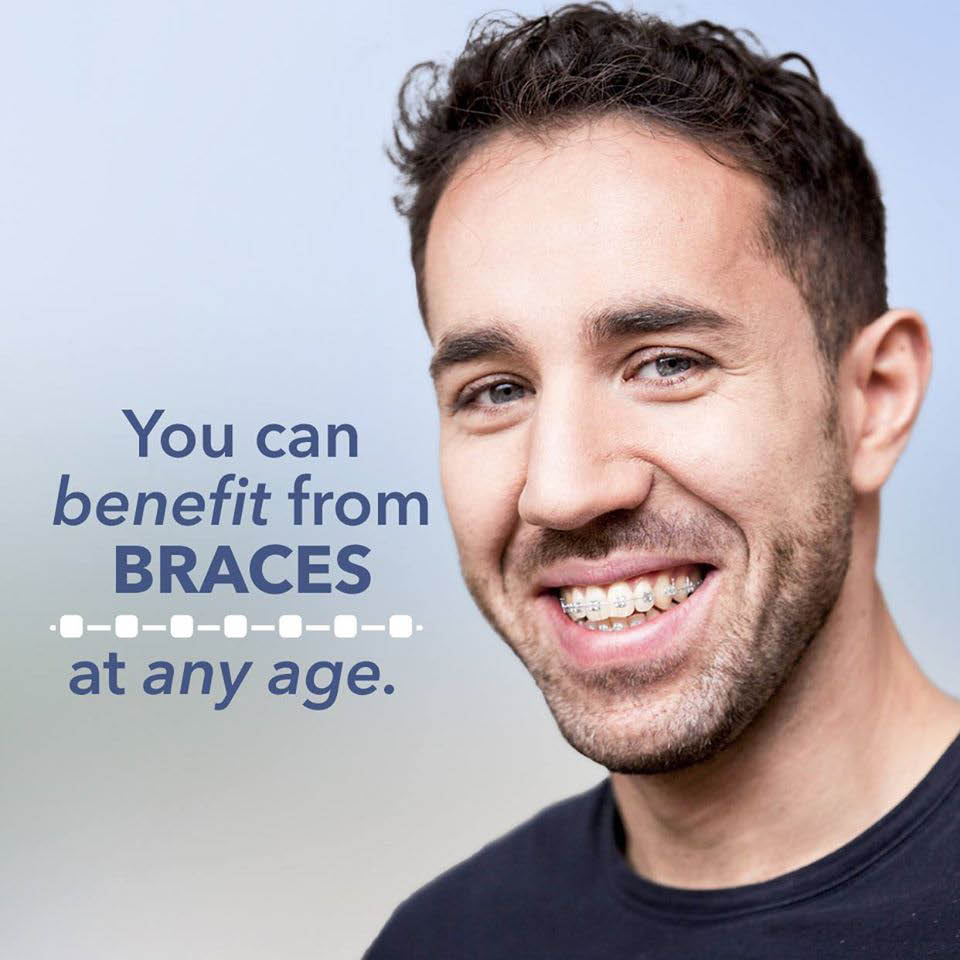 Braces for adults - orthodontics for adults - Snoqualmie Valley Orthodontics in Snoqualmie, WA - Snoqualmie orthodontists near me - Snoqualmie orthodontics near me - orthodontics coupons near me