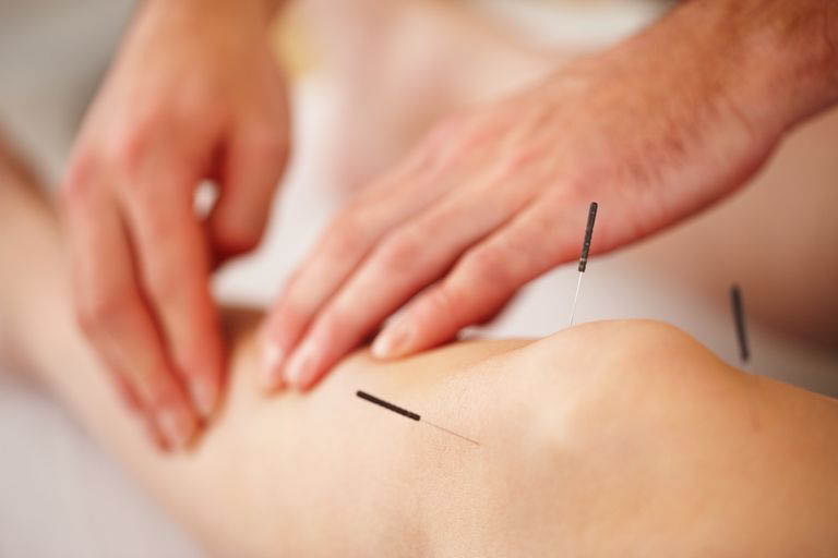 Acupuncture near me - acupuncturists near me - Sound Healing Arts in University Place, Washington