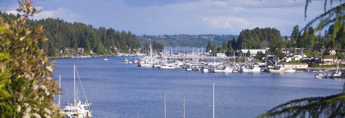 Stadler Family Dentistry Actual Patient - main banner image - Gig Harbor, WA