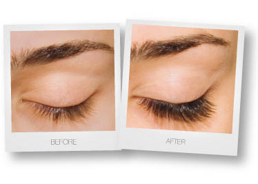 Treatments for eye lashes and more