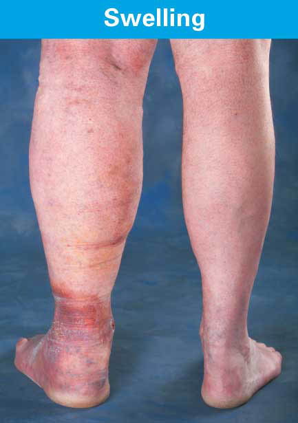 Swelling Skin, Vein Disease Symptoms,