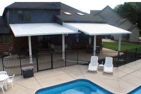 photo of TEMO patio cover from Exterior Designers Inc. in Valparaiso, IN