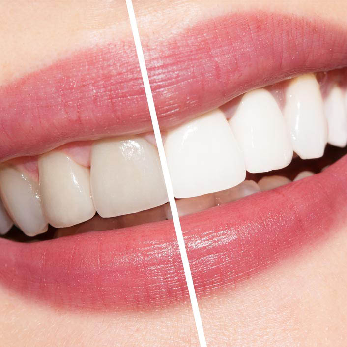 Before and After Teeth Whitening at Summit Dental Care