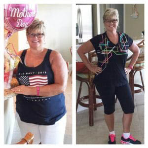 before & after medical weight loss toledo blade weight loss port charlotte, fl