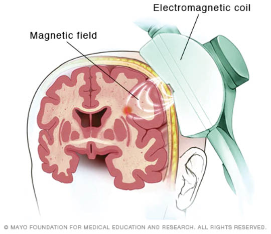 Diagram of Transcranial Magnetic Stimulation - Touchstone TMS in Lakewood, WA - I am depressed - I need help for my depression