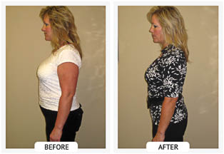 Fat freezing before and after cold laster surgery near Omaha