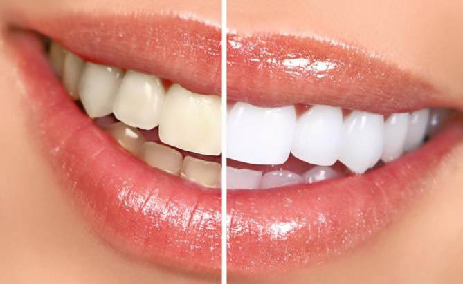 Teeth whitening near Midtown, NYC
