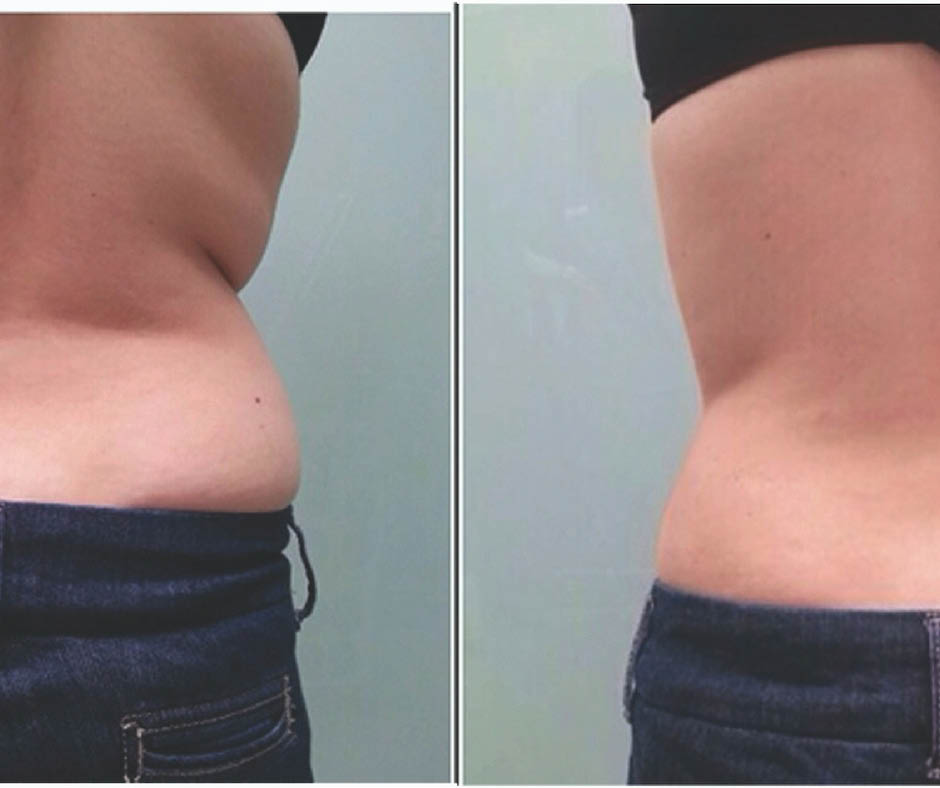 Itex, Miracle Hills Clinic, savings, coupons, health, wellness, beauty, facelift, tightsculpting