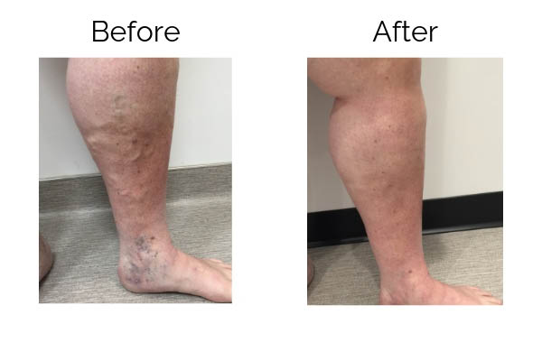Vanish Advanced Vein Treatments Oak Creek WI before and after