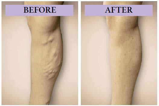Vanishing Veins Northwest - Renton, WA - before and after varicose vein treatment