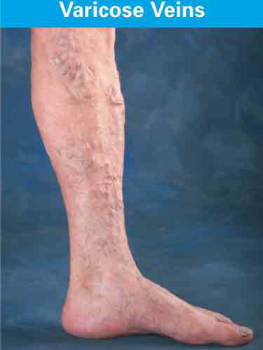 Varicose Vein Symptoms, Centers for Venous Disease, Glendale, AZ